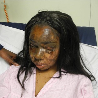 Woman facing jail for acid attack
