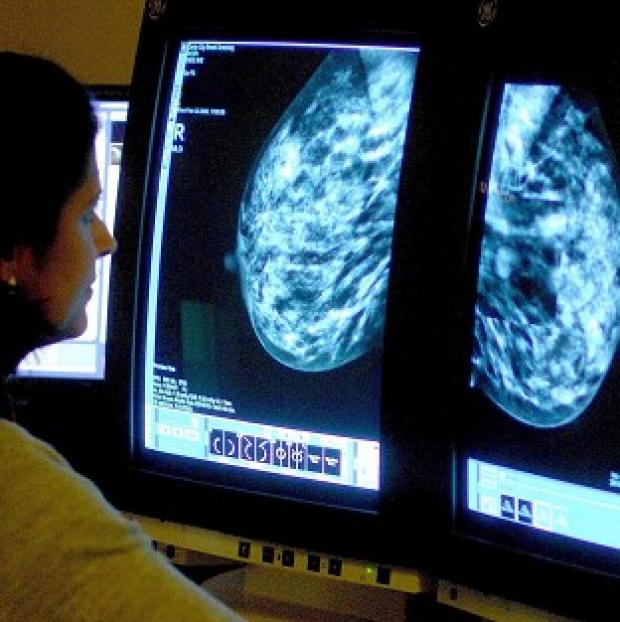 Banbury Cake: There has been a fall in the percentage of women having breast cancer screening.