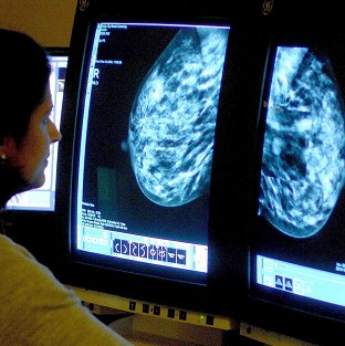 Treatment of breast cancer must also involve women being given information on fertility, a charity said