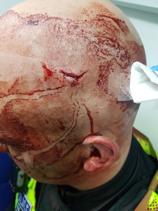 A Bradford police officer's head after he was assaulted in December 2017. File Picture